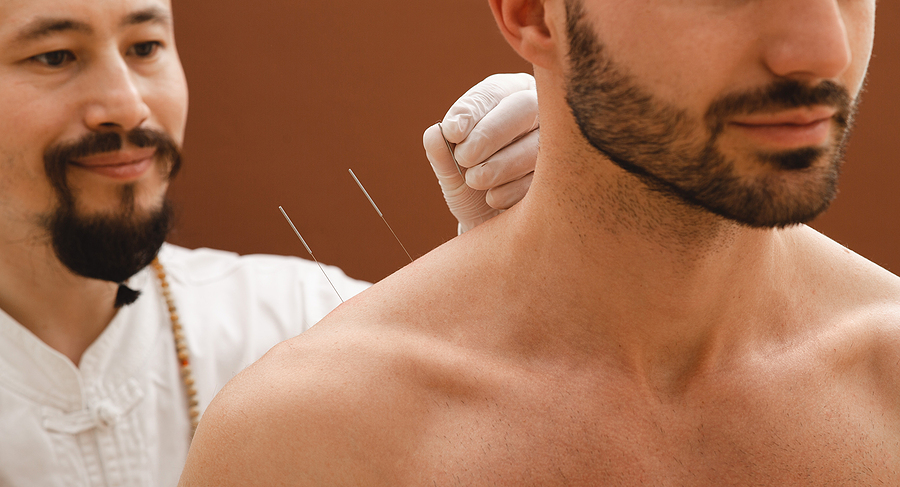Needles for acupuncture for a man's shoulder pain